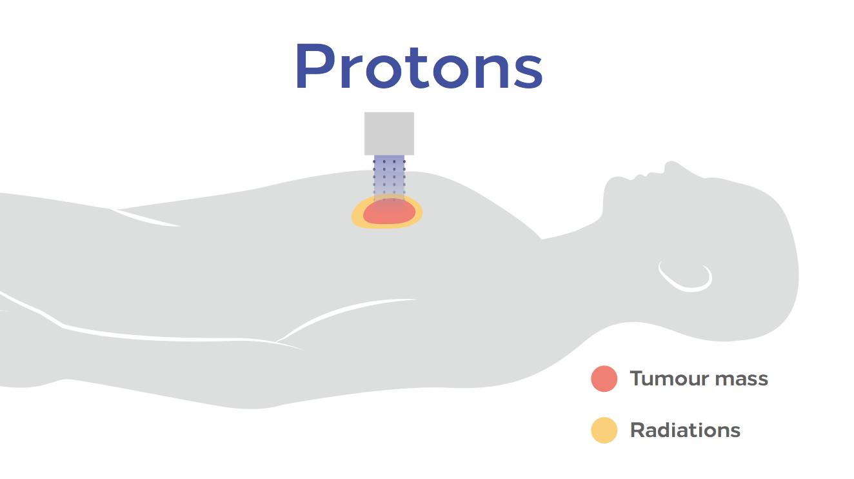 protonterapia